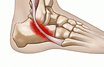 Peroneal tendon attenuation