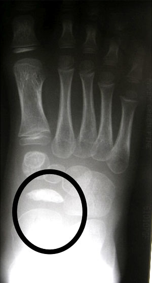 "Abnormal Navicular (AP) ""Coin on end"""