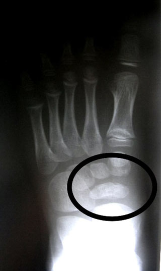 Abnormal Navicular (AP)