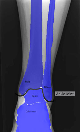 Ankle XRay