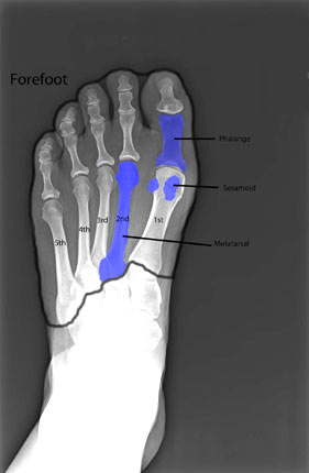 Forefoot XRay