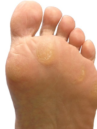 foot callus cream