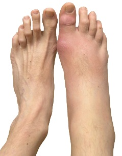 Gouty arthritis present in Right foot